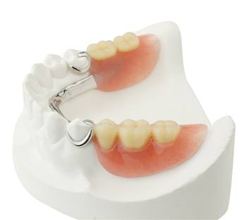 Partial denture on smile model