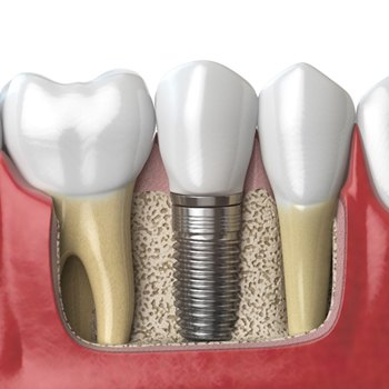 A single tooth dental implant