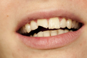 Emergency dentist in Crown Point replants knocked out teeth