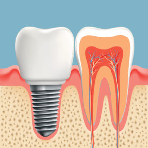 Regain a complete smile with dental implants in Crown Point.