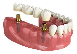 Four unit bridge over two dental implants.