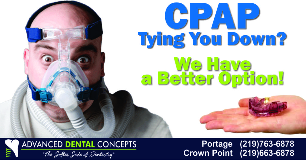 For most patients with Sleep Apnea, CPAP can be replaced with an oral appliance called a Mandibular Advancement Device.