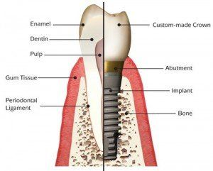 Image of anatomy of a dental implant.